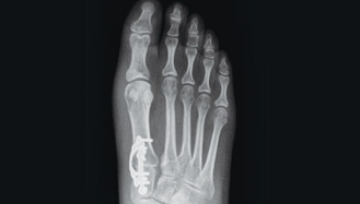 3d foot x-ray