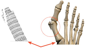 Leaning Tower of Pisa and Foot Graphic