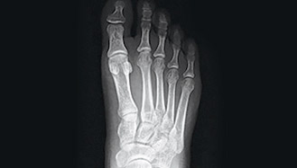Normal foot x-ray