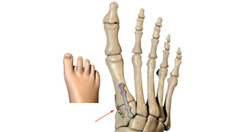 Secured foot 3d graphic